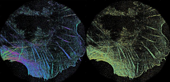 Dr. Sophie Brasselet - Super resolution imaging of proteins' organization image