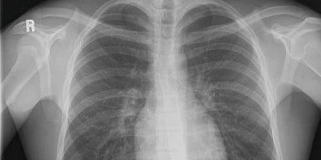An Overview of IR(ME)R for non-Medical X-ray Referrers (Online) - MTW tickets