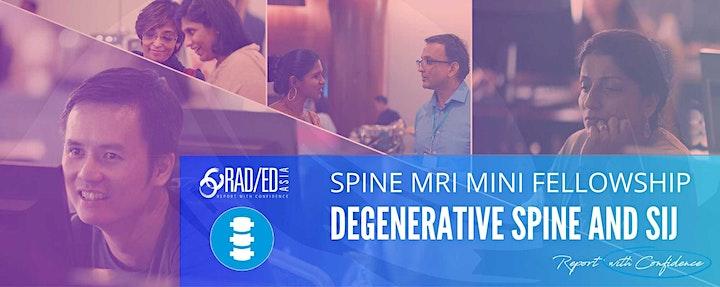 SPINE MRI ONLINE GUIDED MINI FELLOWSHIP DEGENERATIVE SPINE AND SIJ DISEASE image