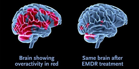 EMDR Therapy for Trauma & Addiction with Susan Rost, LCSW tickets