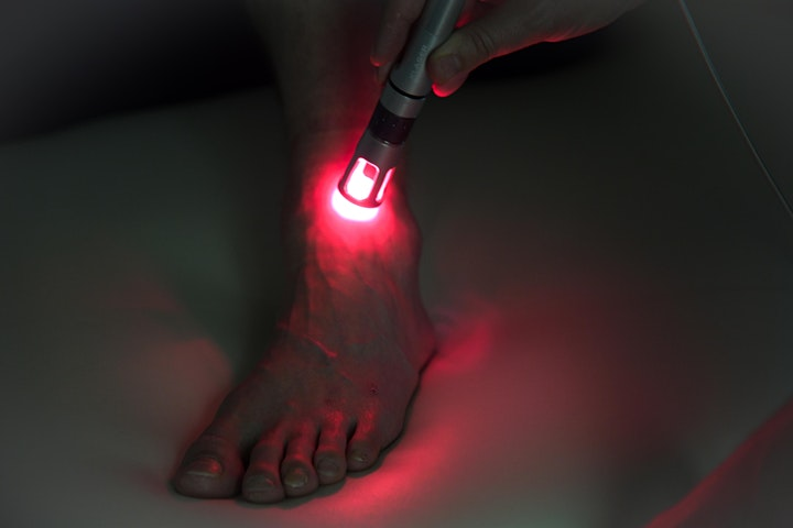 Laser Therapy for Circulation and Lymphatics image