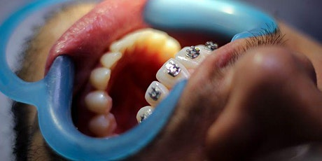 Understanding Orthodontics for the dental Hygienist and OHT tickets