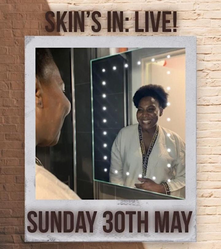 Skin's in: Live! image