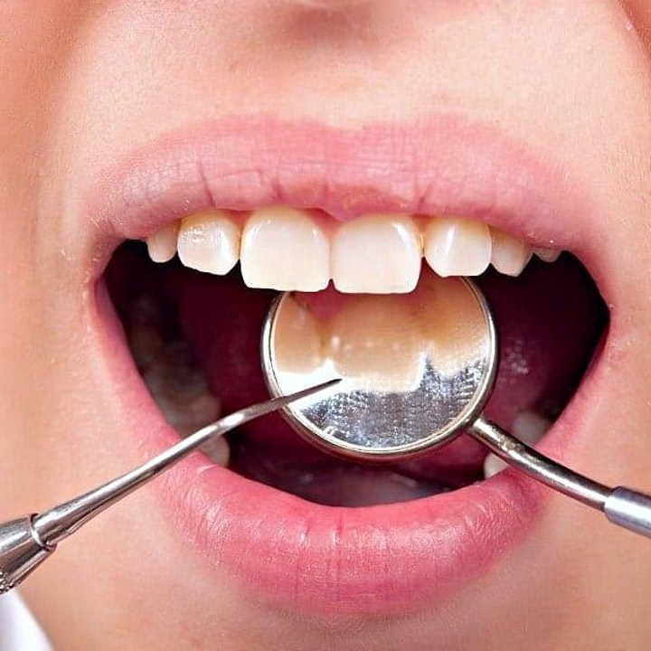 Everything you should know about dental implants image