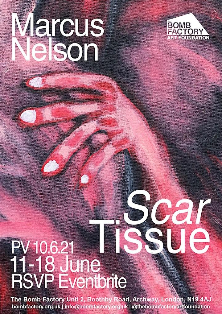 Marcus Nelson - 'Scar Tissue' image