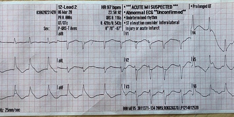 12 Lead ECG for Basic EMT and First Responders tickets