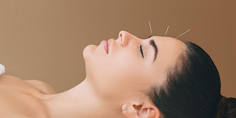 How to get NEW clients for your Acupuncture Business (EASILY) tickets