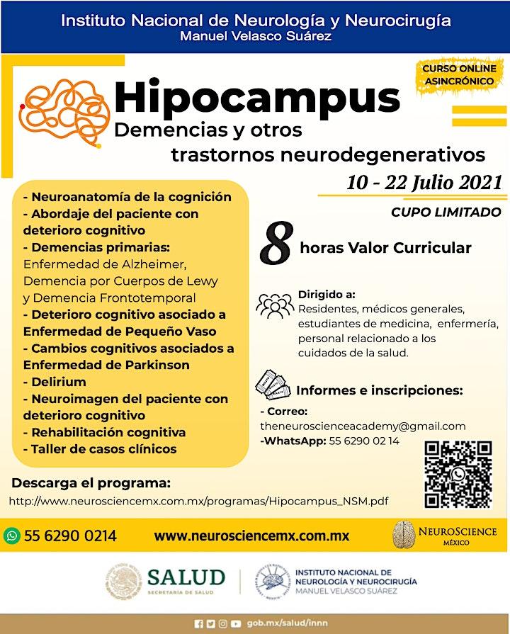 Imagen de Hipocampus: Demencias y otros trastornos neurodegenerativos
