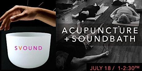 ACUPUNCTURE + SOUND HEALING tickets