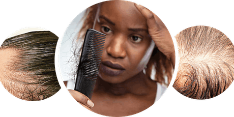 Getting to the Root of Covid Alopecia tickets