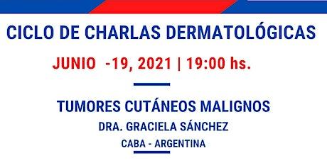MASTER CLASS - TUMORES CUTÁNEOS MALIGNOS - CICLO CHARLAS  A.A.D entradas