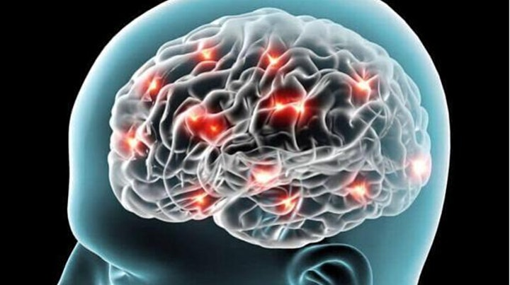 'Faulty' brains and criminal justice: Challenges of novel neurotechnologies image
