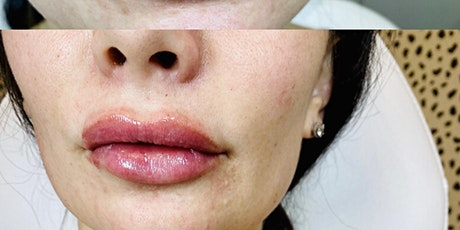 Lip Fillers Scottsdale: A new take on the Botox Party tickets