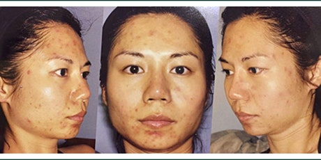 Own clear, healthy and makeup-free skin #bareskinrocks tickets
