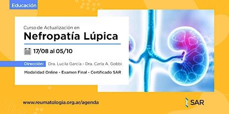 Curso de Actualización en Nefropatia Lúpica entradas