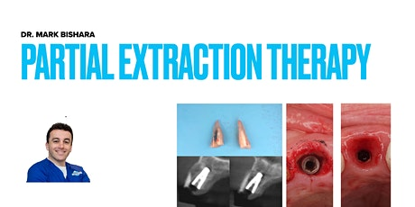 """P.E.T."""" Partial Extraction Therapies & """"SS"""" Socket Shield tickets"""