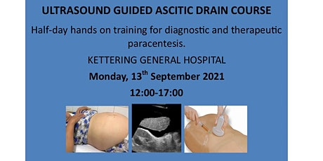Ascitic Drain Course - UK Residents tickets