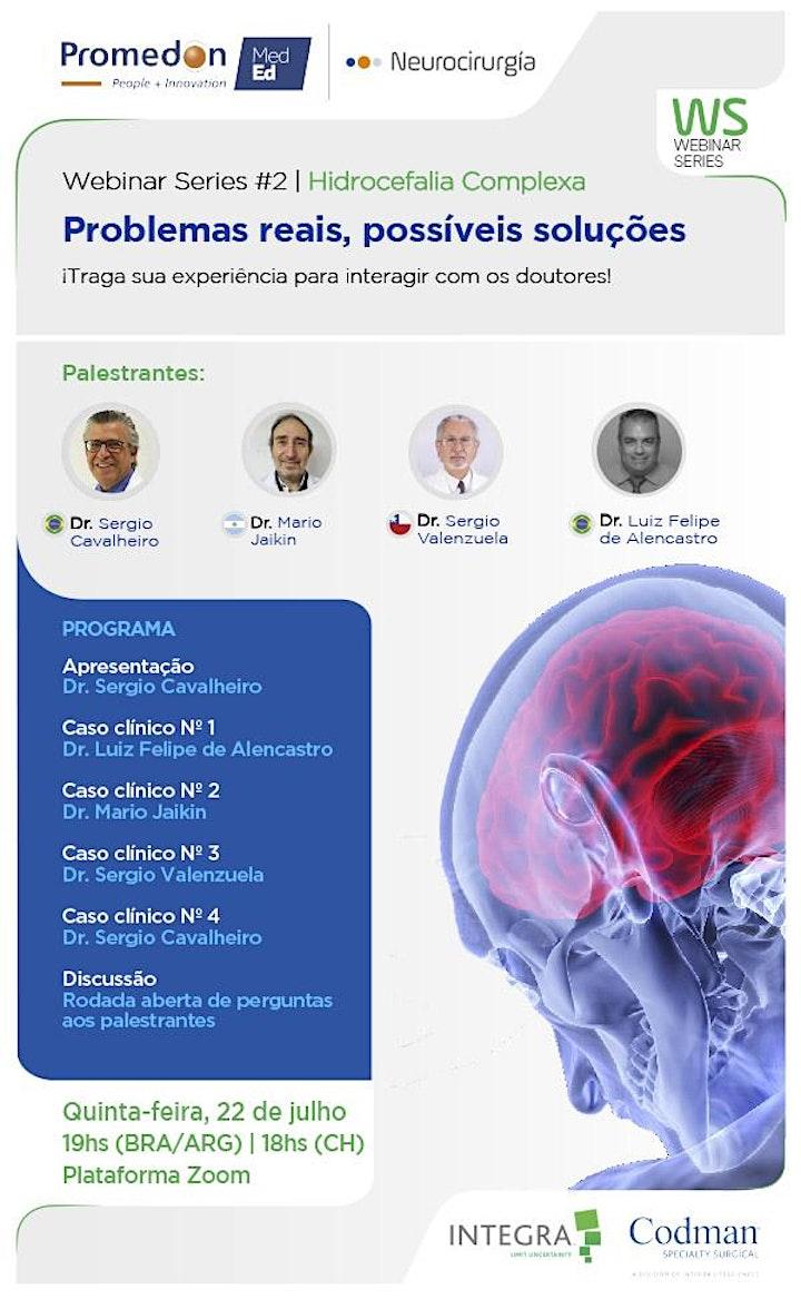 Imagen de Série de Webinars da Promedon Neurocirurgia: Hidrocefalia complexa