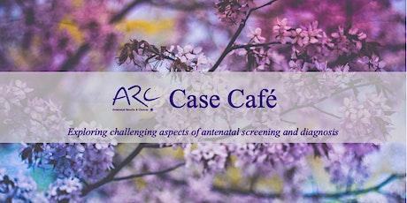 ARC Case Café - August 2021 tickets