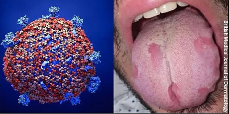 Free Dental CE Symposium. COVID-19: Treating Oral Manifestations Using PBMT tickets