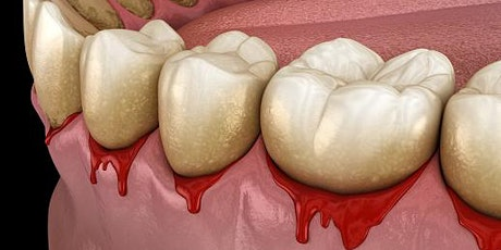 Level UP your Periodontal Care tickets