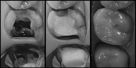 The Endodontic Restorative Interface 8/9 April 2022 tickets