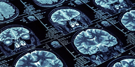 JCA Practical Approach to Neuroradiology tickets