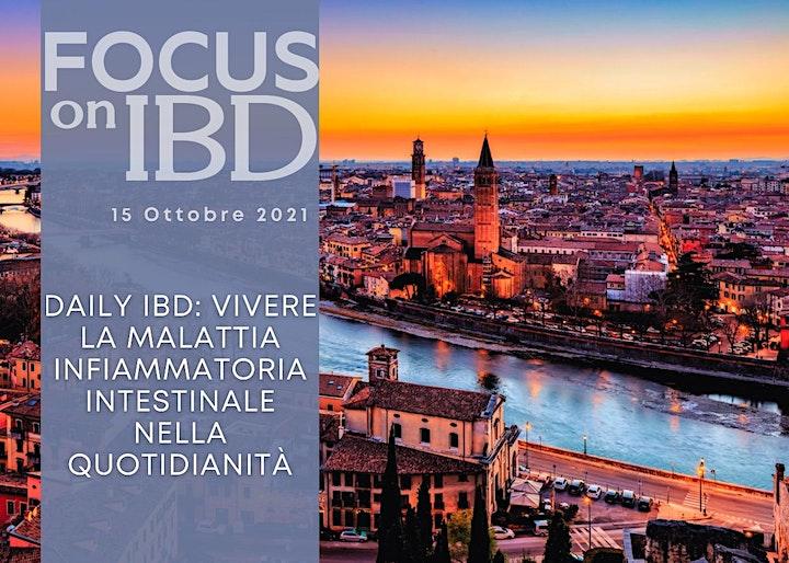 Focus on IBD. Daily IBD. image