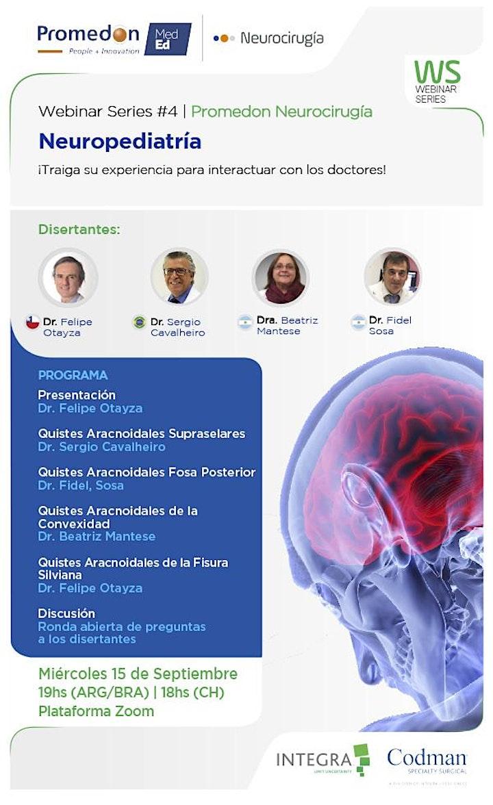Imagen de Promedon Neurocirugía Webinar Series #4: Neuropediatría