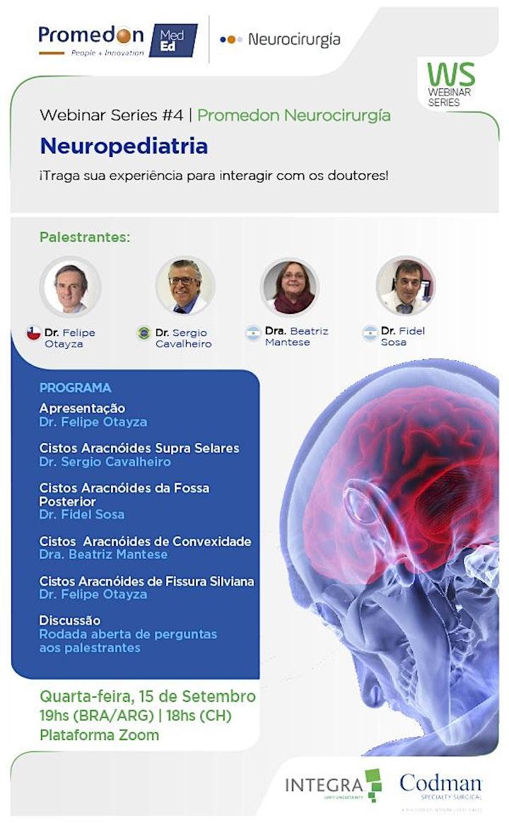 Imagen de Série de Webinars da Promedon Neurocirurgia #4: Neuropediatria