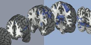 """Meet the Scientists"" - Brain Injury"