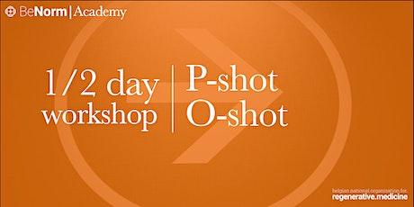 WORKSHOP   PRP O-shot & P-shot tickets