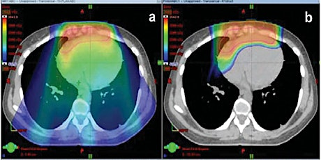 Optimizing Radiation Therapy  Delivery for Hodgkin Lymphoma tickets