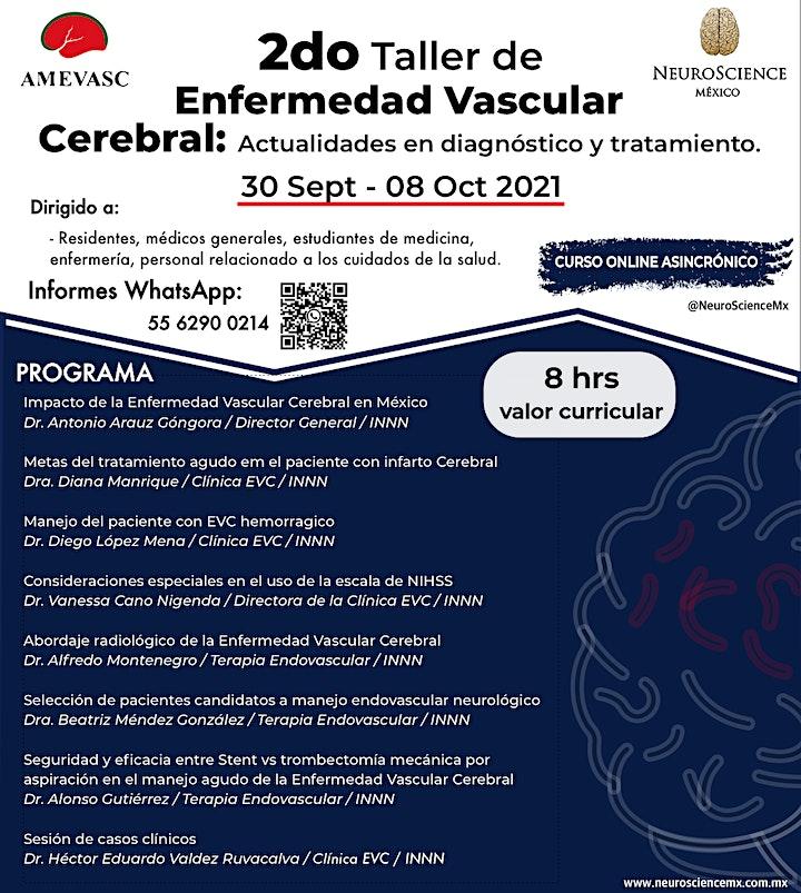 Imagen de 2do Taller de Manejo del Paciente con EVC: Actualidades en Dx y Tx 2021.