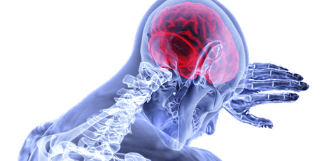 Understanding the Causes and Consequences of Neuroinflammation tickets