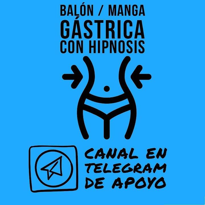 Imagen de Balón gástrico/manga gástrica hipnótica