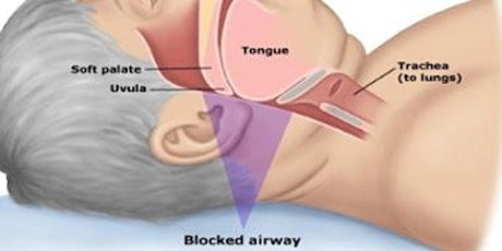 Provider Night: Dr. Carmen Santana DMD  Airway Health and the TMJ tickets