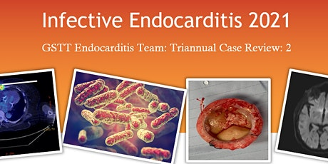 2nd Network Endocarditis Meeting tickets