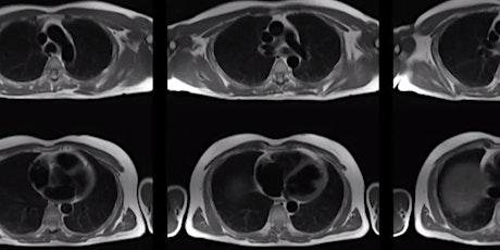 JCA Cardiac MRI – Level 1 CMR Accreditation Course tickets
