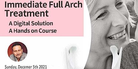 Immediate Full Arch Treatment tickets