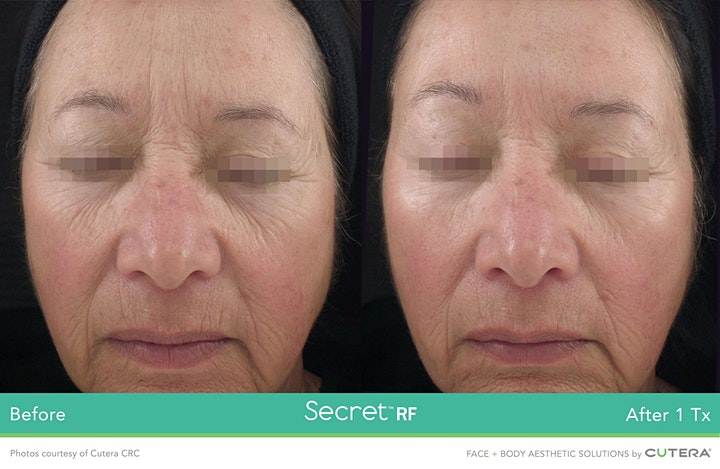 The Secrets of Antiaging: An Evening with Laura Bilotta and D Luxe Lab image