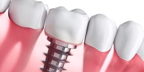 Advanced Implant Maintenance and CIST Protocol for Dental Professionals tickets