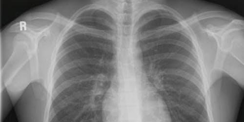 IR(ME)R for X-ray Referrers (Kent & Canterbury Hospital)