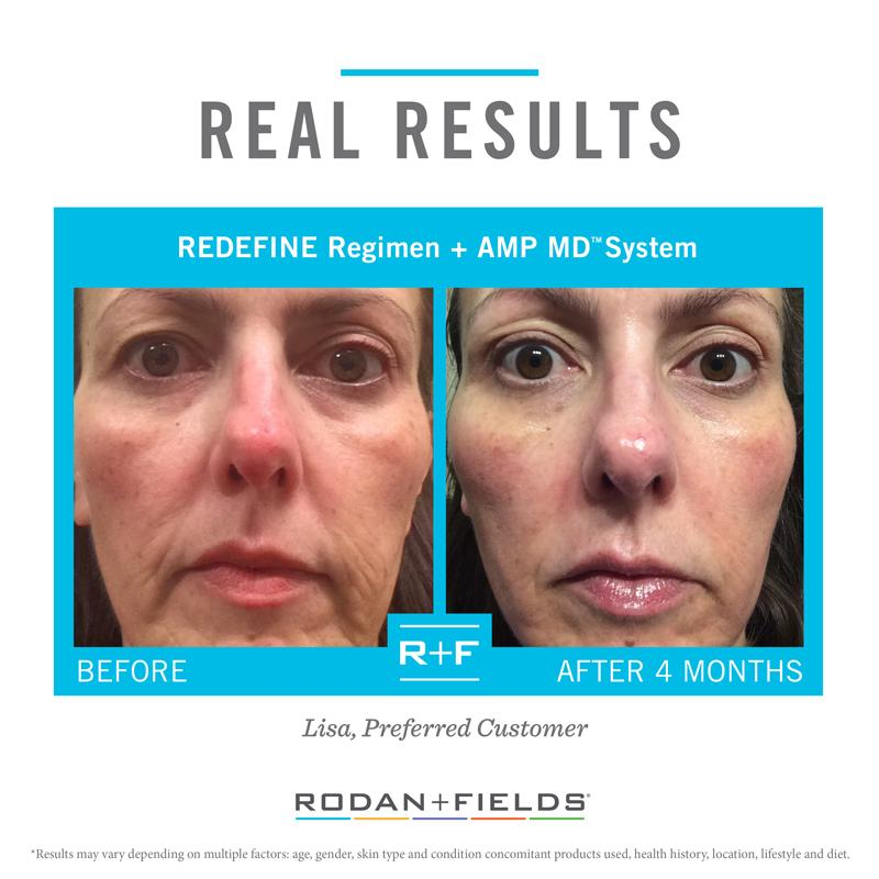 Rodan + Fields® Big Business Launch Event for