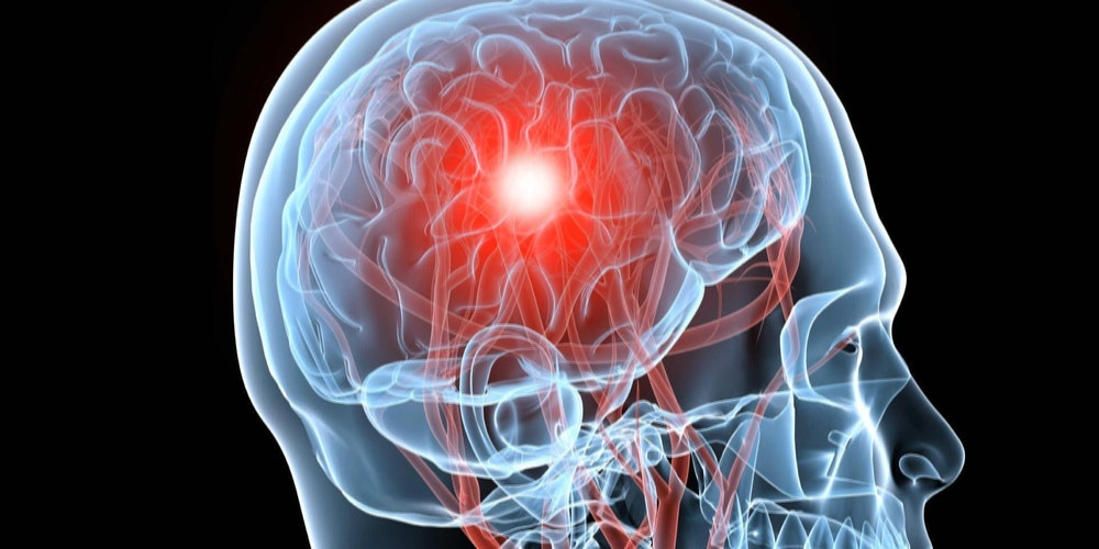 brain aneurysm family encounter