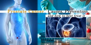 Prostate Cancer: Causes, prevention, and how to best...