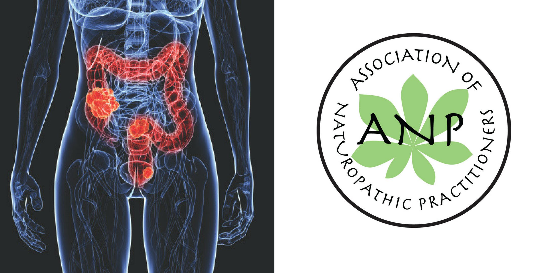 Gut Testing and Interpretation Saturday 10th November ANP Dublin