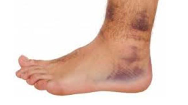 Soft Tissue Injury (Ankle, Knee and Wrist)