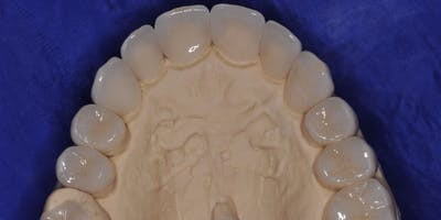Esthetic Crown & Bridge Restorations: Advanced Technology, Techniques, and Materials     June 21, 2019