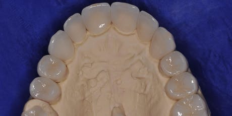 Esthetic Crown & Bridge Restorations: Advanced Technology, Techniques, and Materials	 June 21, 2019 tickets